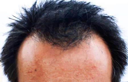 Mannelijke hoofd met haaruitval, haaruitval en kaalheid front.