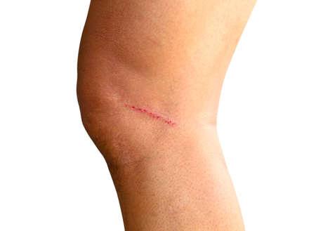 下腿潰瘍 写真素材