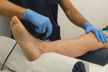 foot doctor: Ultrasound therapy on a foot of an aged man