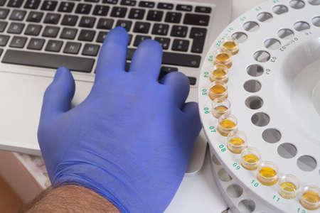 laboratory labware: Keybord, test tube and hand