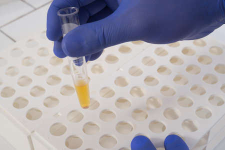 Chemical analysys
