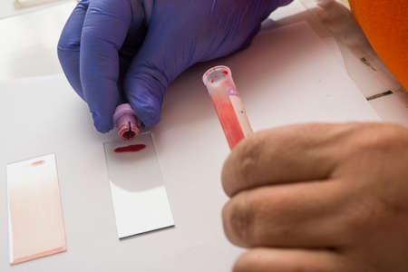 laboratory labware: Laboratory blood test Stock Photo