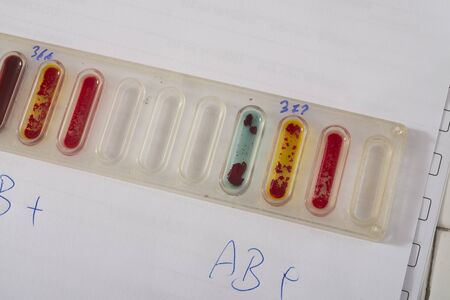 laboratory labware: Lab tests for blood