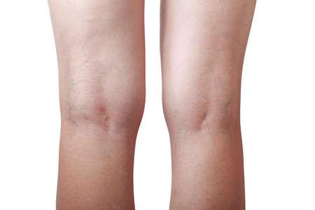 veins: the disease varicose veins on a legs