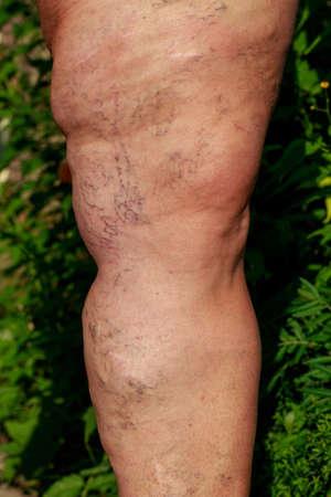 the disease varicose veins on a legs