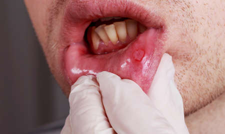 labialis: Stomatitis on the lips of a man
