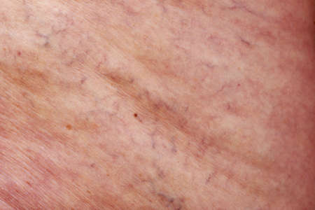 The disease varicose veins on a legs Stock Photo