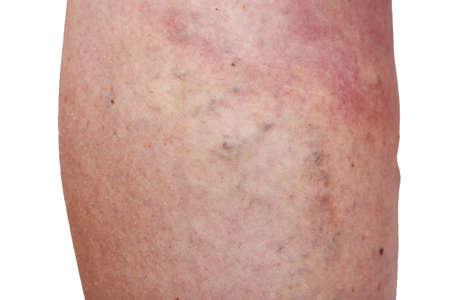 The disease varicose veins on a legs Stok Fotoğraf