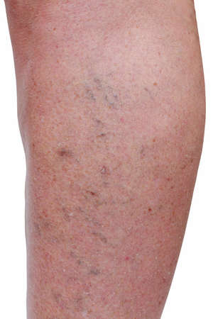 The disease varicose veins on a legs Banco de Imagens