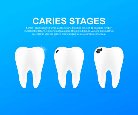 Stage of development of caries. Dental care concept. Healthy Teeth. Vector stock illustration.
