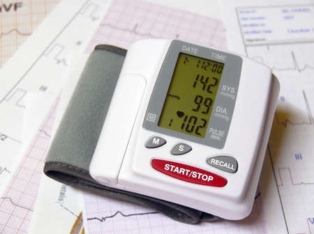 diastolic: Closeup of a blood pressure measuring device on top of ECG papers Stock Photo
