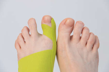 Correction of the big toe. Haliux valgus. Taping with flat feet. Taping when fingers are deformed. Innovative medicine. Stok Fotoğraf