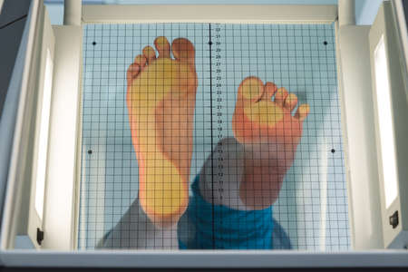 The patient's feet are placed on a special apparatus for determining the load. On one foot, the load is uniform, the second foot is on the toe. It is clearly seen how the load is distributed when wearing heels. Stok Fotoğraf