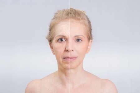 arrugas: Antes y después del disparo belleza en tratamientos de la piel