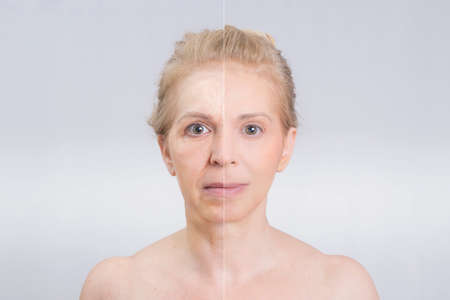 beauty face: Before and after beauty shot in skin treatments