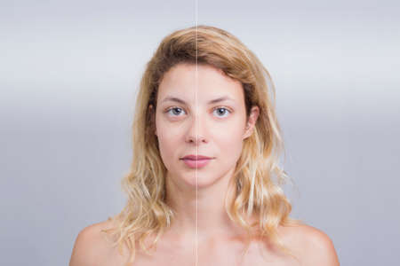 without people: Before and after skin treatment girl