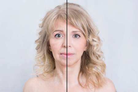 masaje facial: Antes y despu�s del tratamiento de la piel mujer rubia