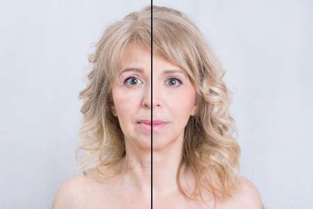 이전과 피부 치료 금발의 여자 후