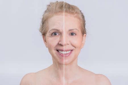 Vor und nach der Gesichtschirurgie Transformation Standard-Bild