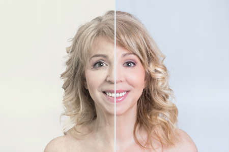 Before and after skin treatment shot of a blonde woman