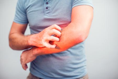 Mensen krabben de jeuk met de hand, elleboog, jeuk, gezondheidszorg en medicijnen, mannen met huidprobleem concept