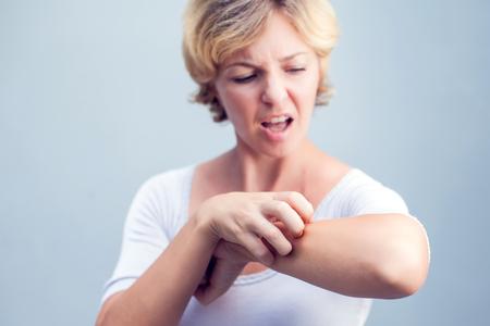 Donna che graffia un prurito su priorità bassa bianca. Pelle sensibile, sintomi di allergia alimentare, irritazione