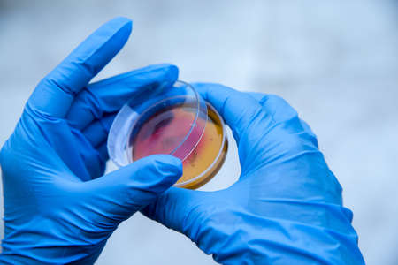 Microbial cultures are foundational and basic diagnostic
