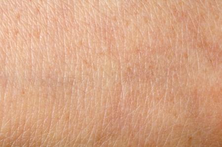 La peau humaine de près. Structure de la peau Banque d'images
