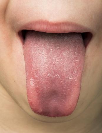 Menschliche Zunge herausragt. Kind Zunge.