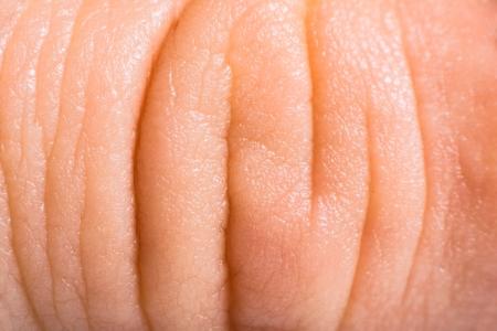 Cierre de la piel humana. Epidermis Macro textura