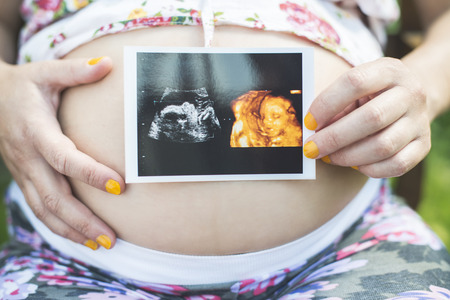womb: Pregnant women hold picture of womb. Daylight in the garden
