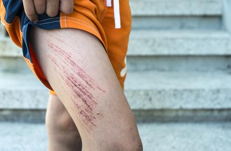 Bruise wound on child's leg. photo