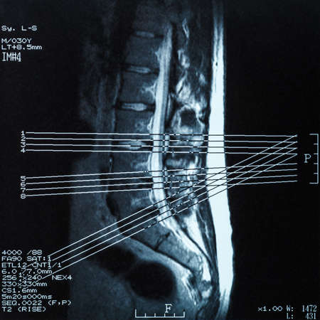 demonstrated: Magnetic resonance imaging (MRI) of lumbo-sacral spines: demonstrated herniated disc at L3-L4 and L4-L5 Stock Photo