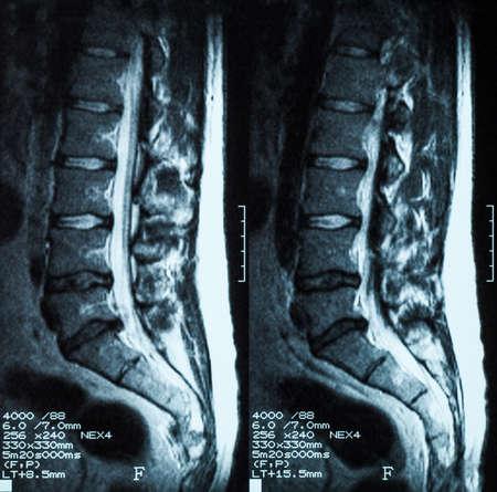 ルンボ仙骨棘の磁気共鳴画像 (MRI): L3 L4 と L5 L4 椎間板ヘルニア実証 写真素材