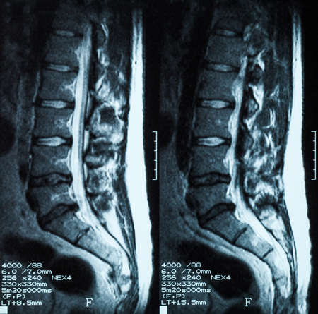 hernia: Magnetic resonance imaging (MRI) of lumbo-sacral spines: demonstrated herniated disc at L3-L4 and L4-L5 Stock Photo