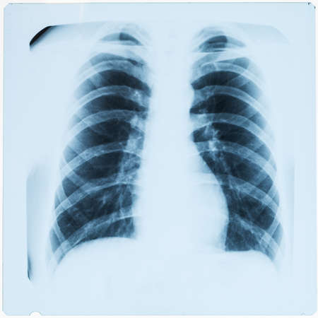 X-ray of male chest after pneumonia photo