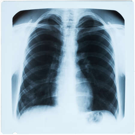 sepsis: X-ray of male chest during pneumonia Stock Photo