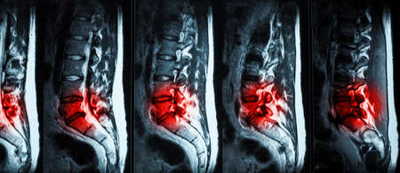 back bone: Magnetic resonance imaging (MRI) of lumbo-sacral spines demonstrating herniated disc at L3-L4 and L4-L5 with red color