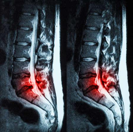 resonancia magnética: La resonancia magnética (MRI) de espinas lumbo sacra que demuestran hernia discal en L3-L4 y L4-L5 con el rojo