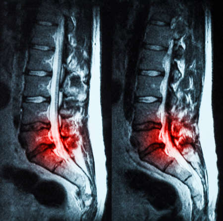 Magnetic resonance imaging (MRI) of lumbo-sacral spines demonstrating herniated disc at L3-L4 and L4-L5 with red color