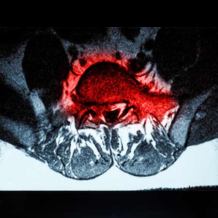 Magnetische resonantie beeldvorming (MRI) van lumbo-sacrale stekels demonstreren hernia op L3-L4 en L4-L5 met rode kleur Stockfoto