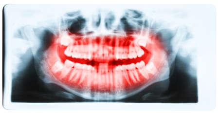 molars: Imagen de rayos x panor�mica de los dientes y la boca con los cuatro molares impactados verticalmente y todav�a no cultivadas y visibles en el hueso de la mand�bula. Cavidades visibles saciados. Dientes que se muestran en rojo.