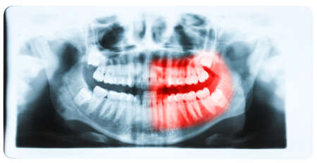 impacted: Panoramic x-ray image of teeth and mouth with all four molars vertically impacted and still not grown and visible in the jaw bone. Filled cavities visible. Teeth on the left part of the face (image right) shown red.