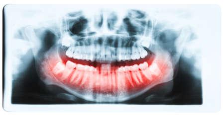 molares: Imagen de rayos x panor�mica de los dientes y la boca con los cuatro molares impactados verticalmente y todav�a no cultivadas y visibles en el hueso de la mand�bula. Cavidades visibles saciados. Los dientes de la mand�bula inferior se muestran en rojo.