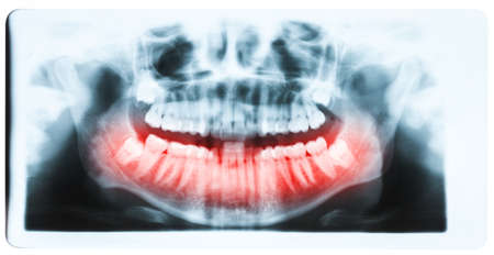 molars: Panoramic x-ray image of teeth and mouth with all four molars vertically impacted and still not grown and visible in the jaw bone. Filled cavities visible. Teeth on lower jaw shown red.