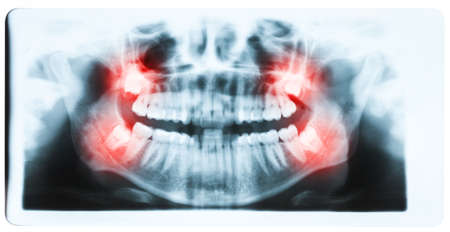 Panoramic x-ray image of teeth and mouth with all four molars vertically impacted and still not grown and visible in the jaw bone. Filled cavities visible. Impacted molars (wisdom teeth, teeth number 8) shown red. Standard-Bild