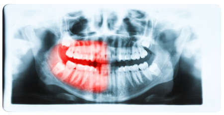 impacted: Panoramic x-ray image of teeth and mouth with all four molars vertically impacted and still not grown and visible in the jaw bone. Filled cavities visible. Stock Photo