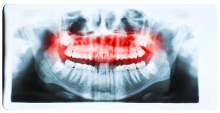 molars: Panoramic x-ray image of teeth and mouth with all four molars vertically impacted and still not grown and visible in the jaw bone. Filled cavities visible. Teeth on upper jaw shown red.