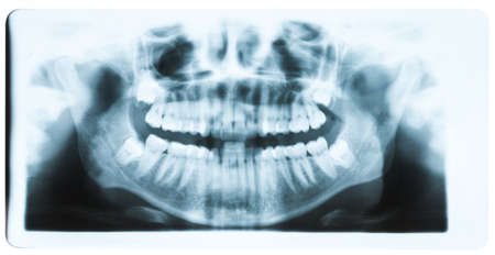 molars: Panoramic x-ray image of teeth and mouth with all four molars vertically impacted and still not grown and visible in the jaw bone. Filled cavities visible. Stock Photo