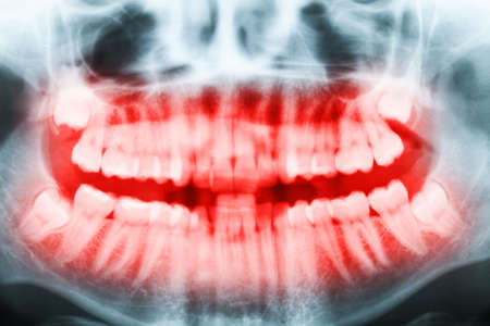 impacted: Close-up x-ray image of teeth and mouth with all four molars vertically impacted and still not grown and visible in the jaw bone. Filled cavities visible. Teeth shown in red. Stock Photo